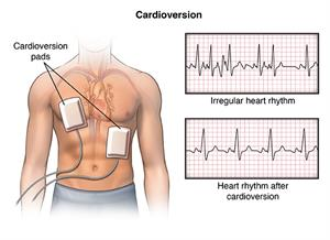 Cardioversion, showing cardioversion pads, and read-outs of irregular heart rhythm and heart rhythm after cardioversion