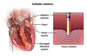 View of the electrical system of the heart and catheter in place. Close up of catheter performing tissue ablation.
