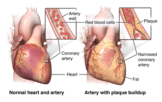 Normal heart and artery; artery with plaque buildup