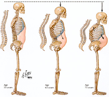 Image of three female skeletons illustrating osteoporosis at ages 55, 65, and 75 years.